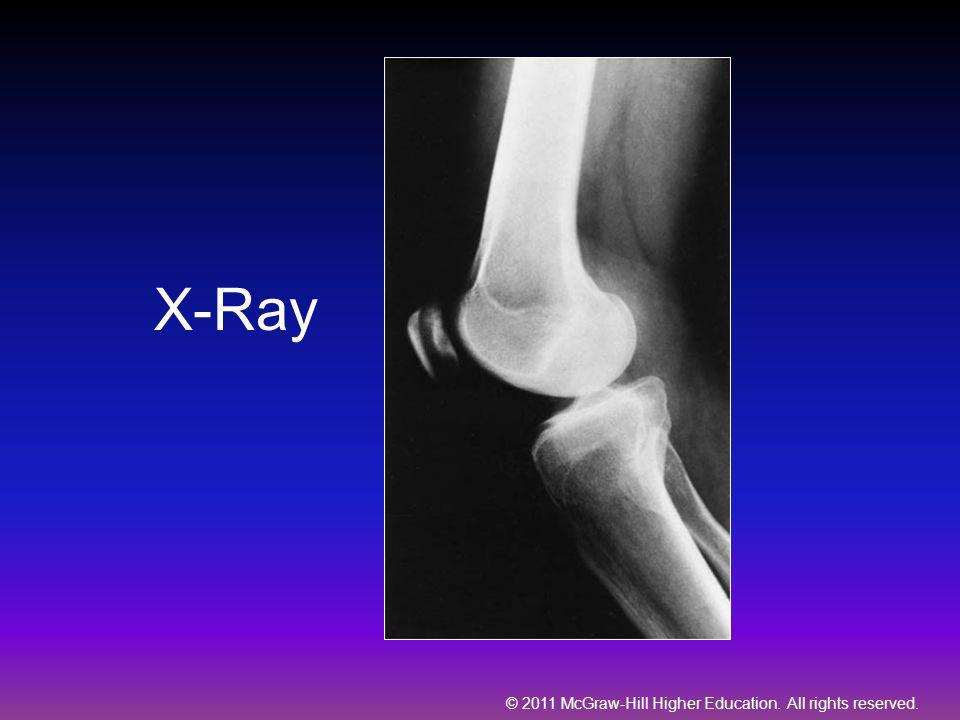 © 2011 McGraw-Hill Higher Education. All rights reserved. X-Ray