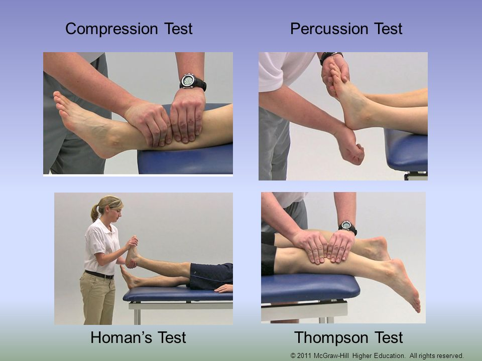Compression TestPercussion Test Homans TestThompson Test © 2011 McGraw-Hill Higher Education. All rights reserved.
