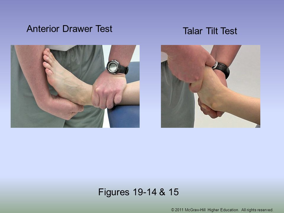 Anterior Drawer Test Talar Tilt Test Figures 19-14 & 15 © 2011 McGraw-Hill Higher Education. All rights reserved.