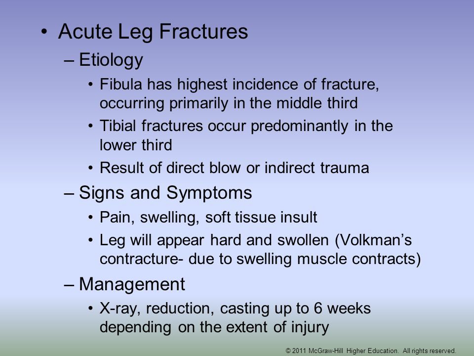 Acute Leg Fractures –Etiology Fibula has highest incidence of fracture, occurring primarily in the middle third Tibial fractures occur predominantly i