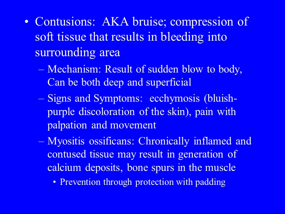 © 2009 McGraw-Hill Higher Education. All rights reserved. Contusions: AKA bruise; compression of soft tissue that results in bleeding into surrounding