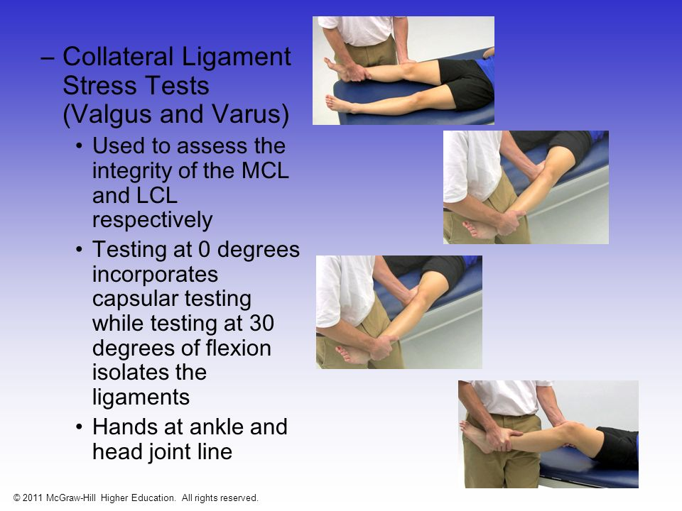 –Anterior Cruciate Ligament Tests Drawer test at 90 degrees of flexion –Tibia sliding forward from under the femur is considered a positive sign (ACL) –Should be performed w/ knee internally and externally to test integrity of joint capsule Figure 20-18 © 2011 McGraw-Hill Higher Education.