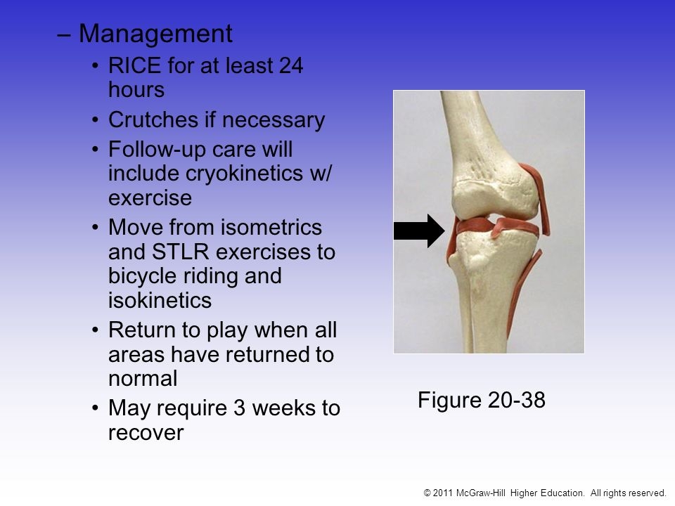–Signs and Symptoms (Grade II) Complete tear of deep capsular ligament and partial tear of superficial layer of MCL No gross instability; laxity at 5-15 degrees of flexion Slight swelling Moderate to severe joint tightness w/ decreased ROM Pain along medial aspect of knee –Management RICE for 48-72 hours; crutch use until acute phase has resolved Possibly a brace or casting prior to the initiation of ROM activities Modalities 2-3 times daily for pain Gradual progression from isometrics (quad exercises) to CKC exercises; functional progression activities © 2011 McGraw-Hill Higher Education.
