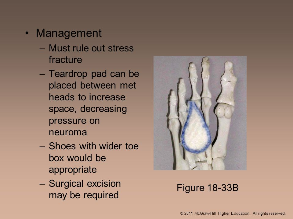 Management –Must rule out stress fracture –Teardrop pad can be placed between met heads to increase space, decreasing pressure on neuroma –Shoes with