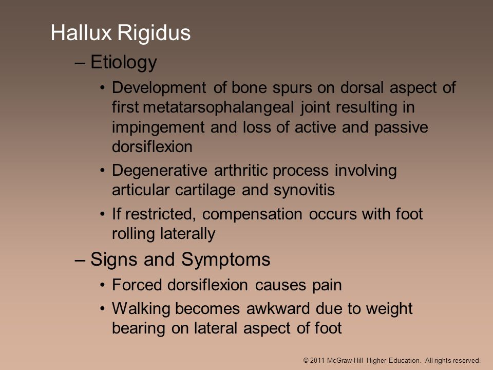 Hallux Rigidus –Etiology Development of bone spurs on dorsal aspect of first metatarsophalangeal joint resulting in impingement and loss of active and