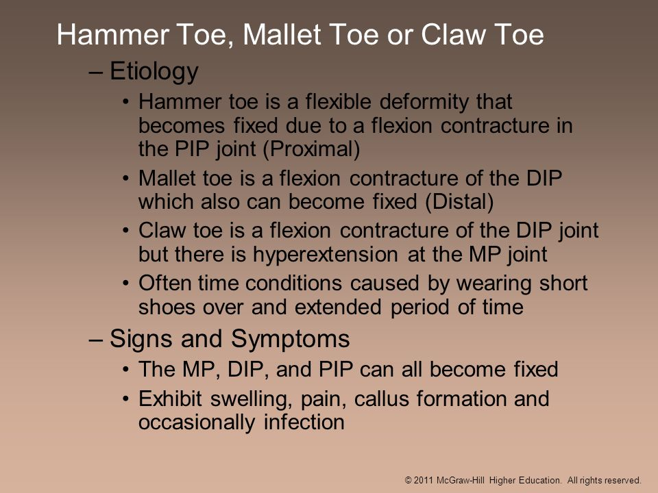 Hammer Toe, Mallet Toe or Claw Toe –Etiology Hammer toe is a flexible deformity that becomes fixed due to a flexion contracture in the PIP joint (Prox