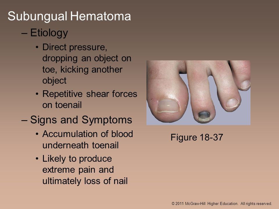 Subungual Hematoma –Etiology Direct pressure, dropping an object on toe, kicking another object Repetitive shear forces on toenail –Signs and Symptoms