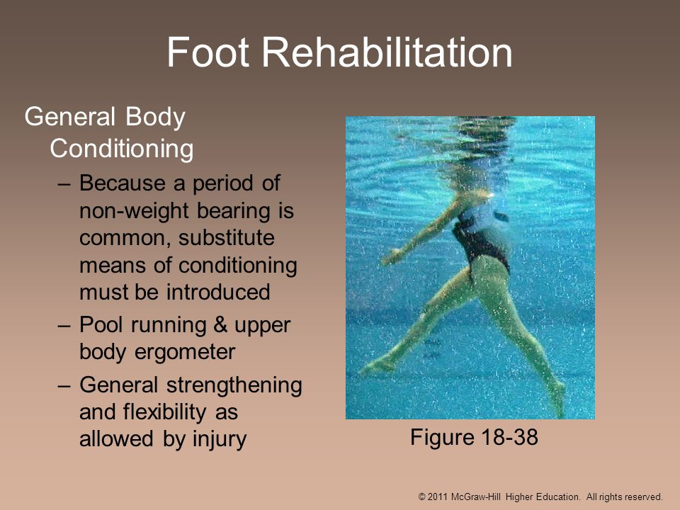 Foot Rehabilitation General Body Conditioning –Because a period of non-weight bearing is common, substitute means of conditioning must be introduced –