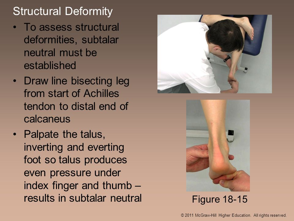 Structural Deformity To assess structural deformities, subtalar neutral must be established Draw line bisecting leg from start of Achilles tendon to d