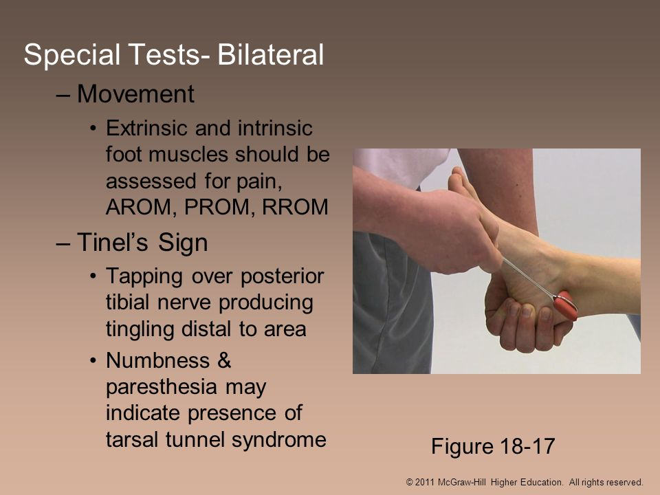 Special Tests- Bilateral –Movement Extrinsic and intrinsic foot muscles should be assessed for pain, AROM, PROM, RROM –Tinels Sign Tapping over poster