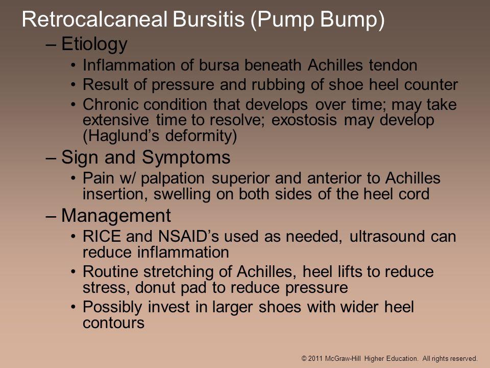 Retrocalcaneal Bursitis (Pump Bump) –Etiology Inflammation of bursa beneath Achilles tendon Result of pressure and rubbing of shoe heel counter Chroni