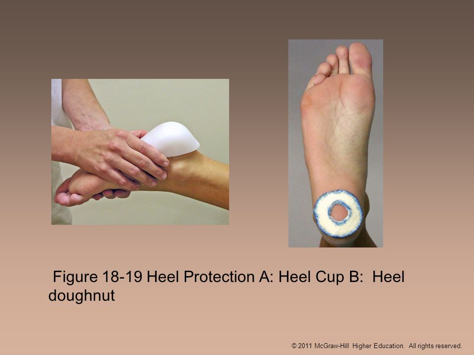 Figure 18-19 Heel Protection A: Heel Cup B: Heel doughnut © 2011 McGraw-Hill Higher Education. All rights reserved.