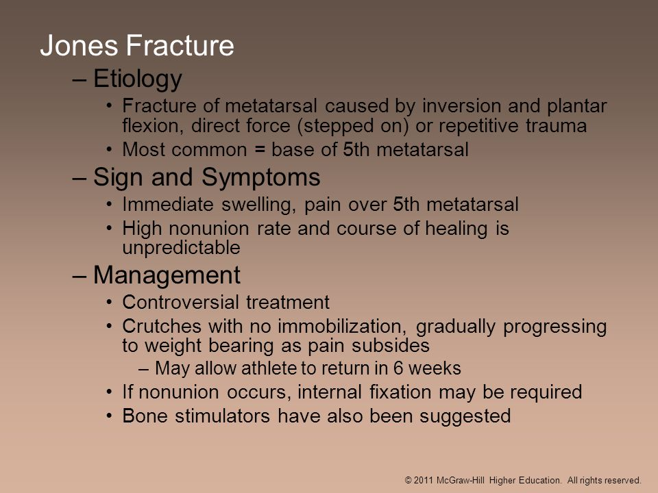 Jones Fracture –Etiology Fracture of metatarsal caused by inversion and plantar flexion, direct force (stepped on) or repetitive trauma Most common =