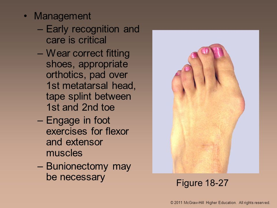 Management –Early recognition and care is critical –Wear correct fitting shoes, appropriate orthotics, pad over 1st metatarsal head, tape splint betwe