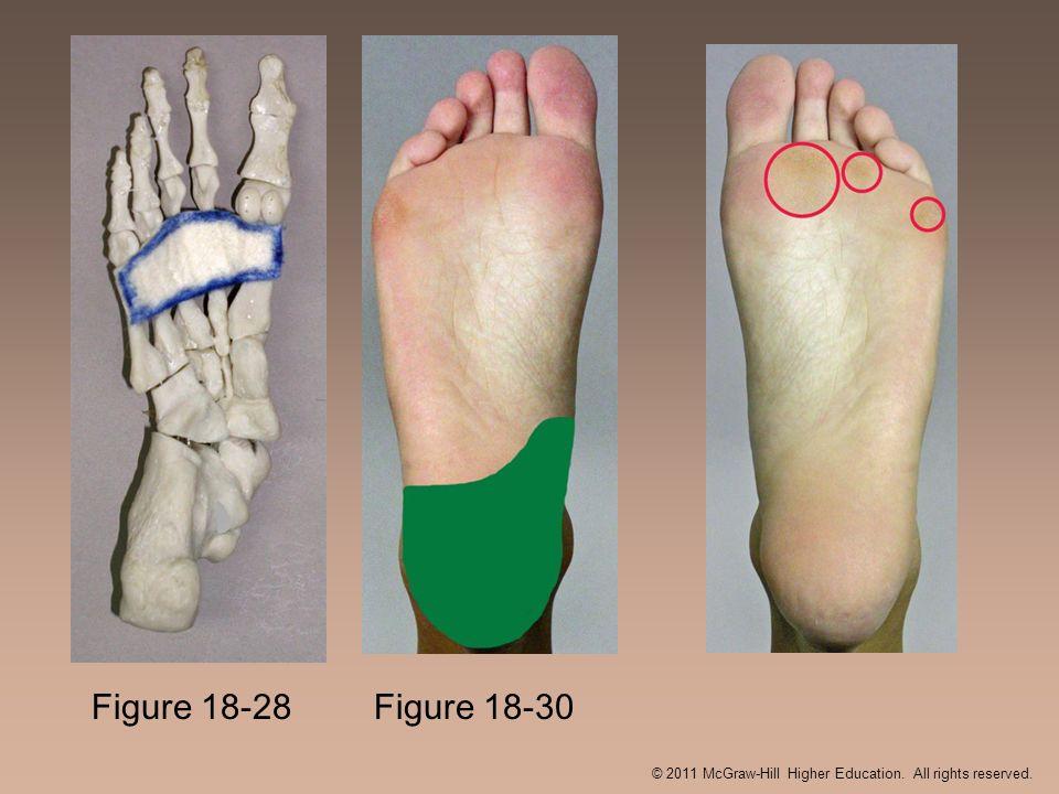 Figure 18-30 Figure 18-28