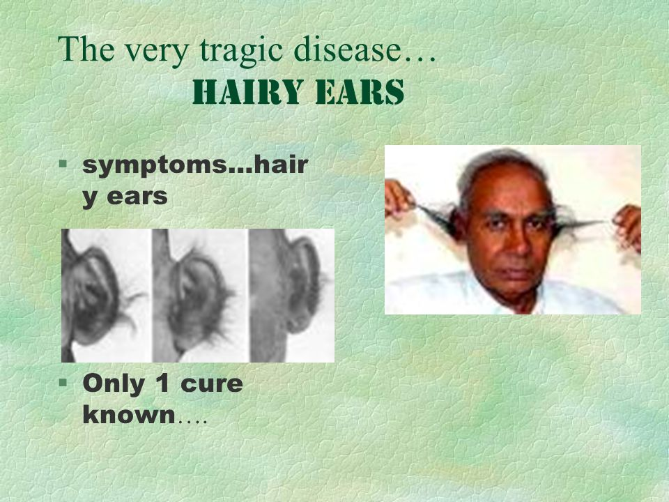 The very tragic disease… hairy ears §symptoms…hair y ears Only 1 cure known ….