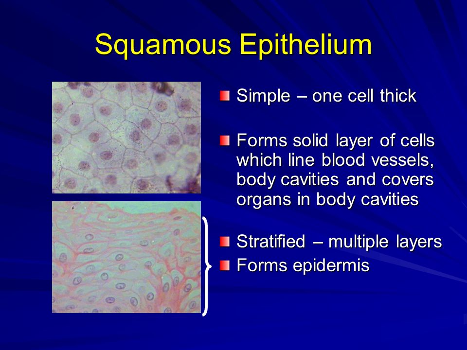 Squamous Epithelium Simple – one cell thick Forms solid layer of cells which line blood vessels, body cavities and covers organs in body cavities Stra