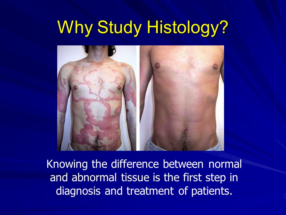 Why Study Histology? Knowing the difference between normal and abnormal tissue is the first step in diagnosis and treatment of patients.