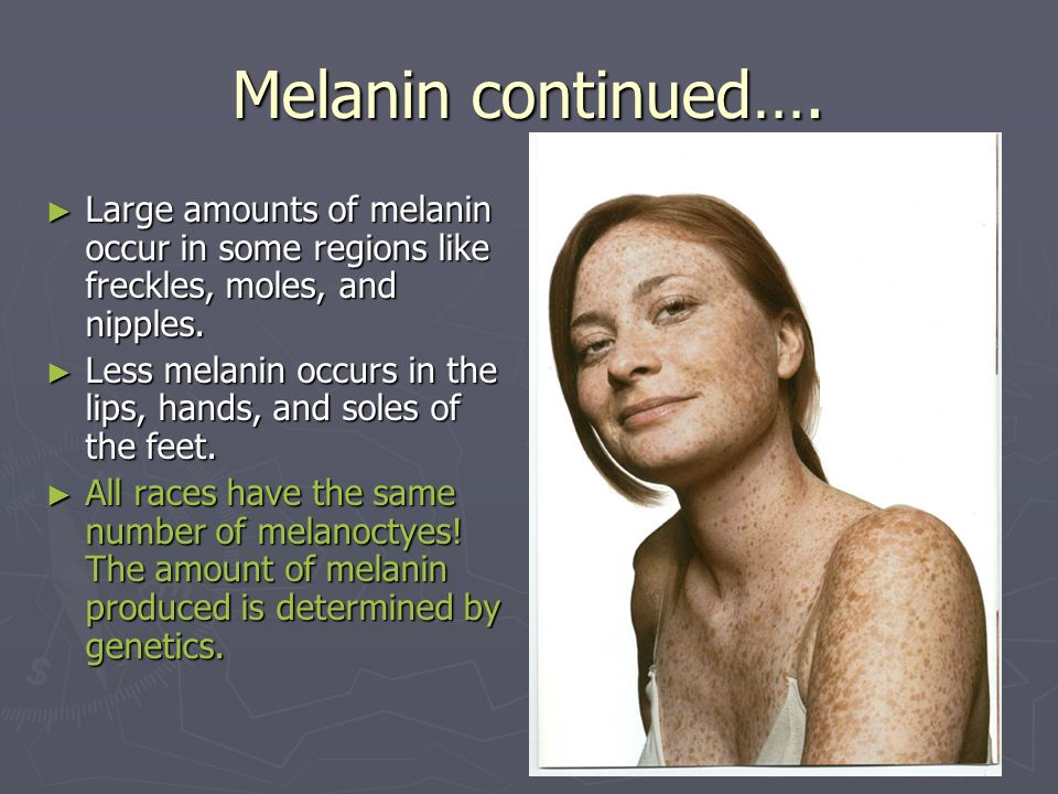 Melanin continued…. Large amounts of melanin occur in some regions like freckles, moles, and nipples. Large amounts of melanin occur in some regions l