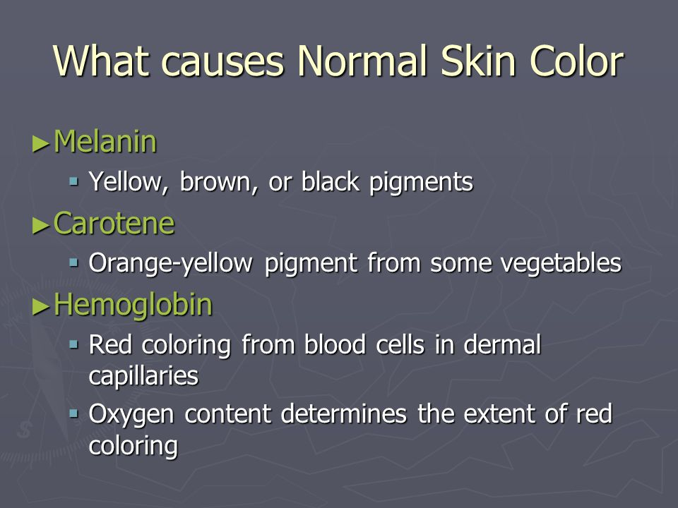 What causes Normal Skin Color Melanin Melanin Yellow, brown, or black pigments Yellow, brown, or black pigments Carotene Carotene Orange-yellow pigmen