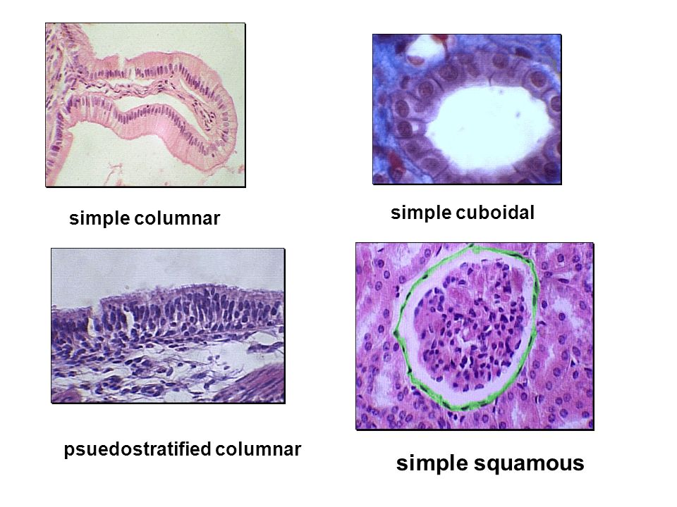 simple columnar simple cuboidal simple squamous psuedostratified columnar