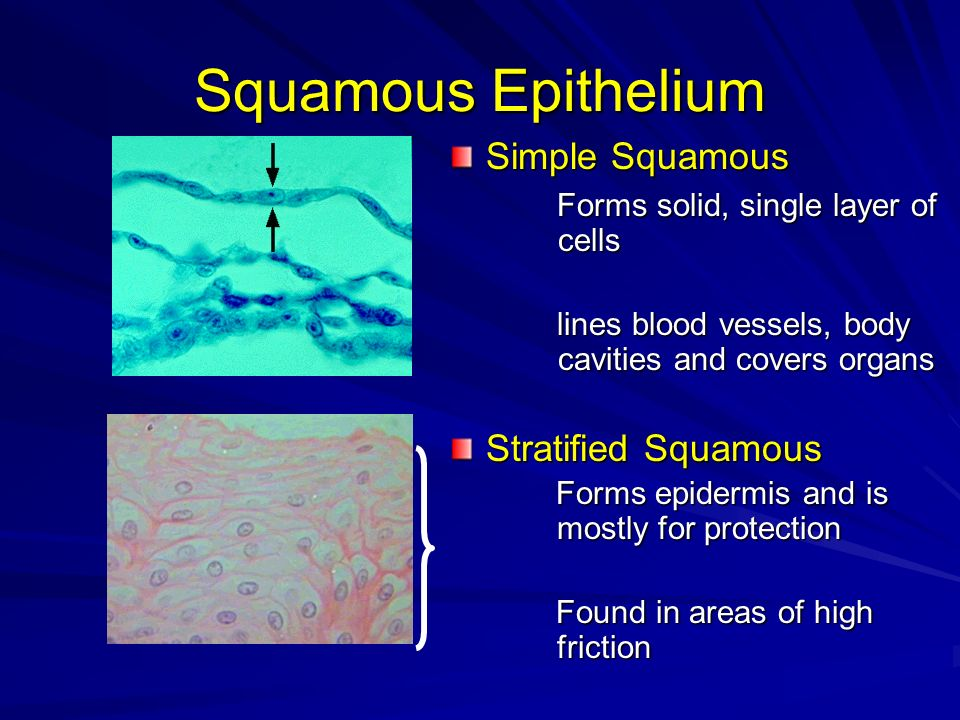 Squamous Epithelium Simple Squamous Forms solid, single layer of cells Forms solid, single layer of cells lines blood vessels, body cavities and cover