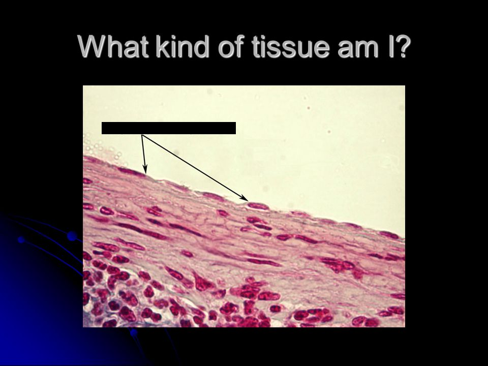 What kind of tissue am I?