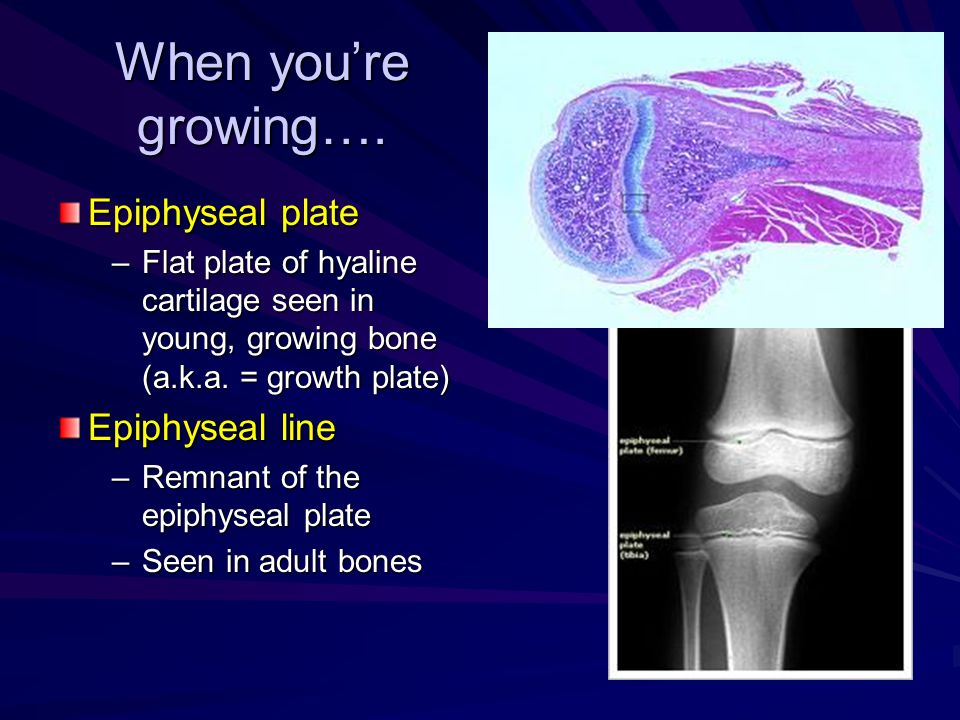 When youre growing…. Epiphyseal plate –Flat plate of hyaline cartilage seen in young, growing bone (a.k.a. = growth plate) Epiphyseal line –Remnant of