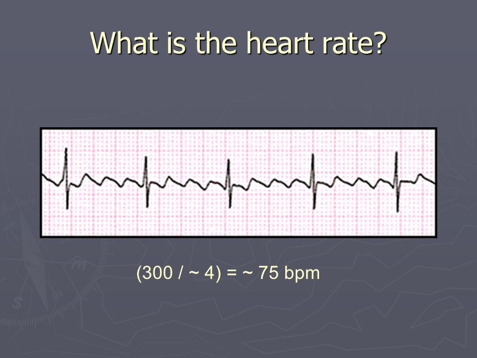 What is the heart rate? (300 / ~ 4) = ~ 75 bpm