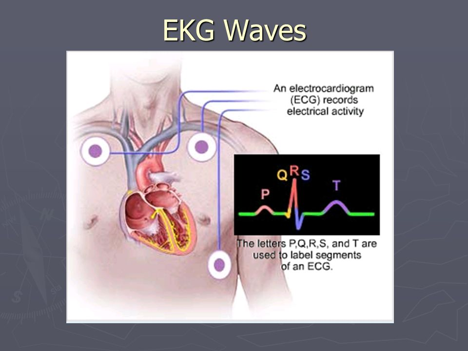 EKG Waves