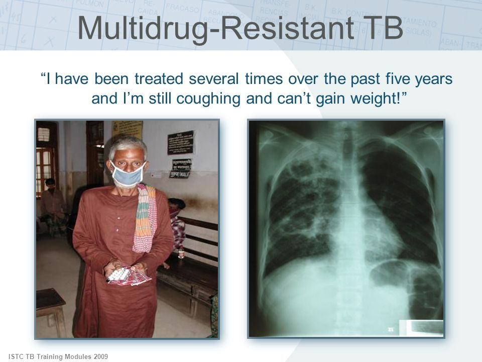 ISTC TB Training Modules 2009 Multidrug-Resistant TB I have been treated several times over the past five years and Im still coughing and cant gain weight!
