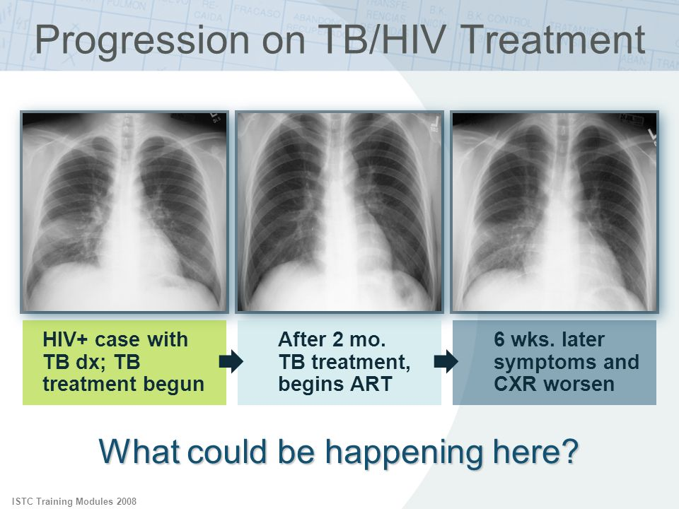 ISTC Training Modules 2008 Progression on TB/HIV Treatment What could be happening here? HIV+ case with TB dx; TB treatment begun After 2 mo. TB treat