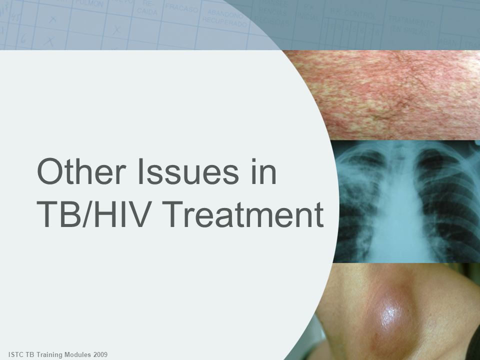 ISTC TB Training Modules 2009 Other Issues in TB/HIV Treatment