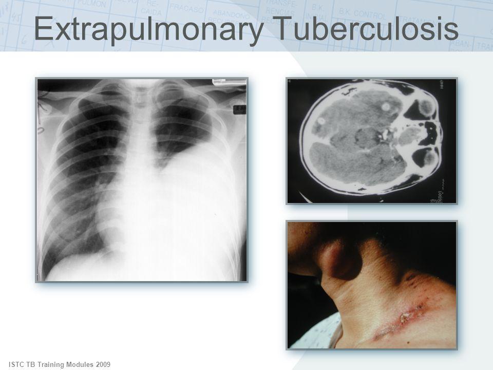 ISTC TB Training Modules 2009 Extrapulmonary Tuberculosis