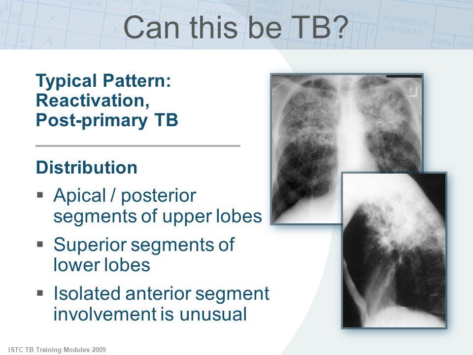 ISTC TB Training Modules 2009 Distribution Apical / posterior segments of upper lobes Superior segments of lower lobes Isolated anterior segment invol