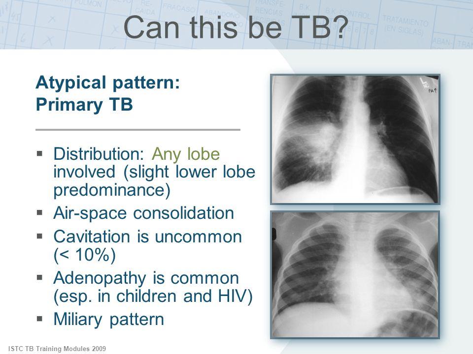 ISTC TB Training Modules 2009 Can this be TB? Distribution: Any lobe involved (slight lower lobe predominance) Air-space consolidation Cavitation is u