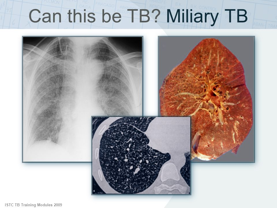ISTC TB Training Modules 2009 Can this be TB? Miliary TB