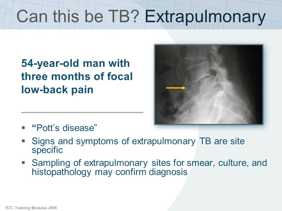 ISTC Training Modules 2008 54-year-old man with three months of focal low-back pain Can this be TB? Extrapulmonary Potts disease Signs and symptoms of