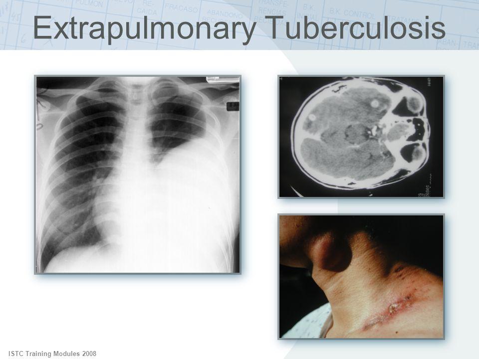 ISTC Training Modules 2008 Extrapulmonary Tuberculosis