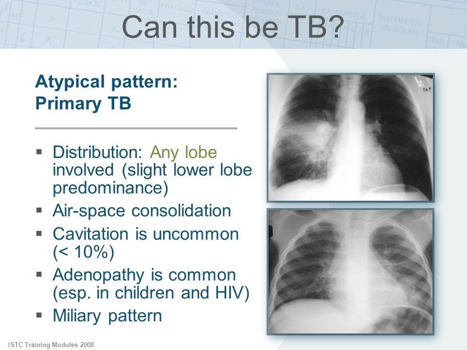 ISTC Training Modules 2008 Can this be TB? Distribution: Any lobe involved (slight lower lobe predominance) Air-space consolidation Cavitation is unco