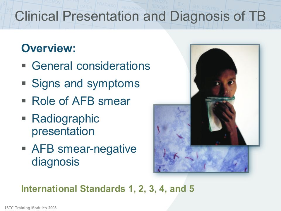 ISTC Training Modules 2008 Clinical Presentation and Diagnosis of TB International Standards 1, 2, 3, 4, and 5 Overview: General considerations Signs