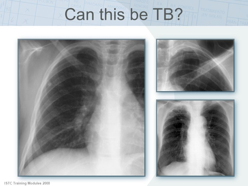 ISTC Training Modules 2008 Can this be TB?