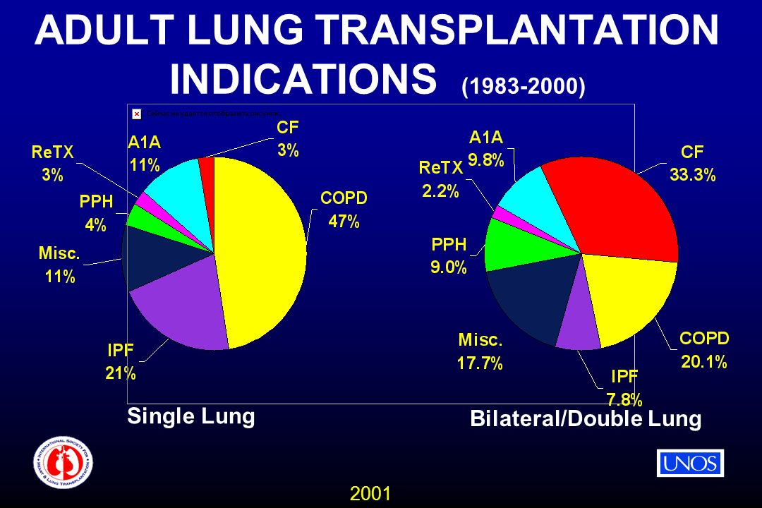 2001 ADULT LUNG TRANSPLANTATION INDICATIONS (1983-2000) Single Lung Bilateral/Double Lung