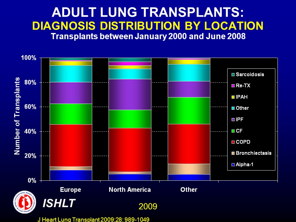J Heart Lung Transplant 2009;28: 989-1049 ADULT LUNG TRANSPLANTS: DIAGNOSIS DISTRIBUTION BY LOCATION Transplants between January 2000 and June 2008 ISHLT 2009
