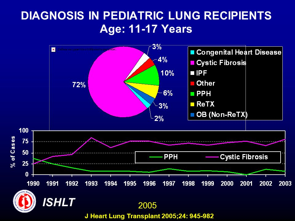 DIAGNOSIS IN PEDIATRIC LUNG RECIPIENTS Age: 11-17 Years ISHLT 2005 J Heart Lung Transplant 2005;24: 945-982