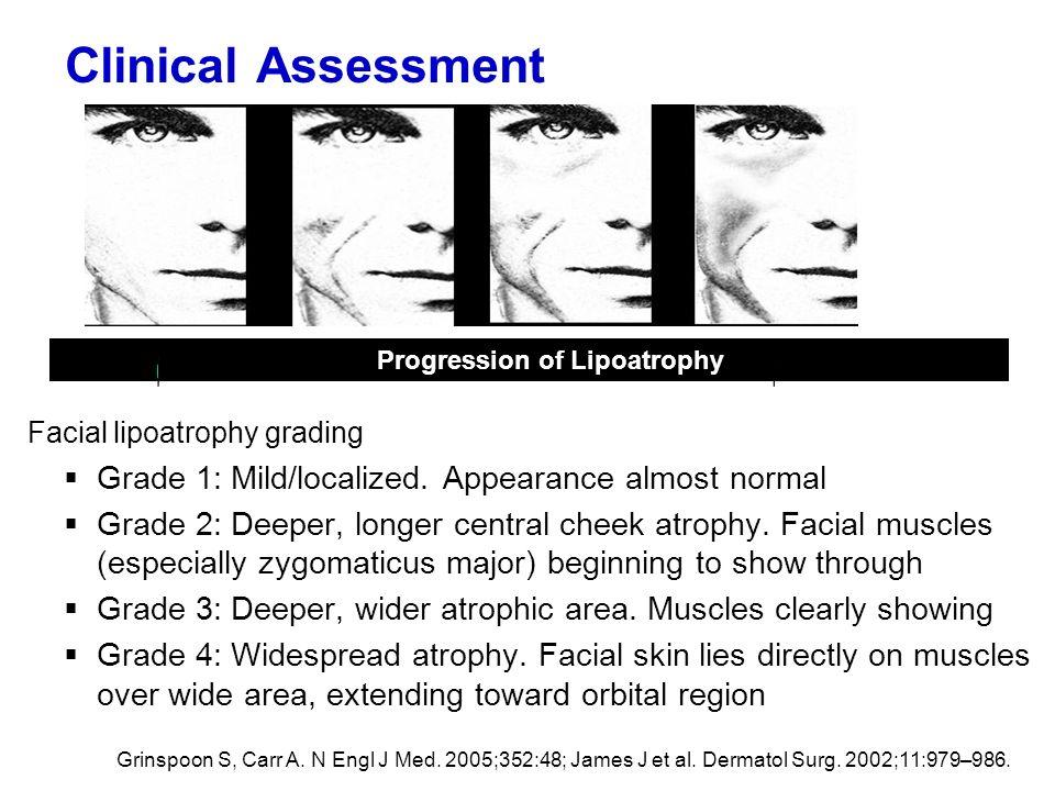 Clinical Assessment Facial lipoatrophy grading Grade 1: Mild/localized. Appearance almost normal Grade 2: Deeper, longer central cheek atrophy. Facial