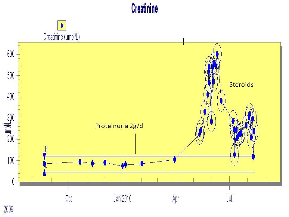 Proteinuria 2g/d Steroids