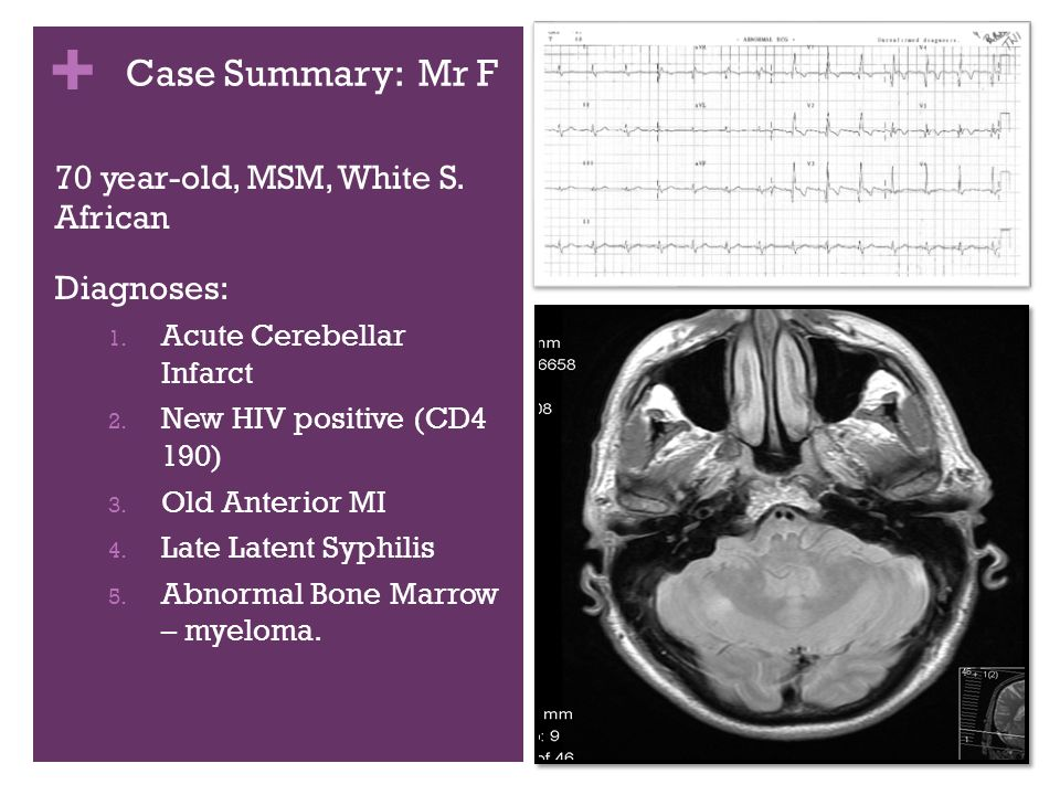 + Case Summary: Mr F 70 year-old, MSM, White S. African Diagnoses: 1.