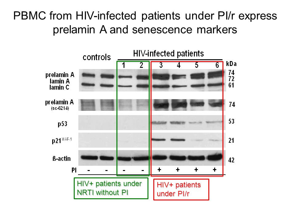 PBMC from HIV-infected patients under PI/r express prelamin A and senescence markers HIV+ patients under NRTI without PI HIV+ patients under PI/r
