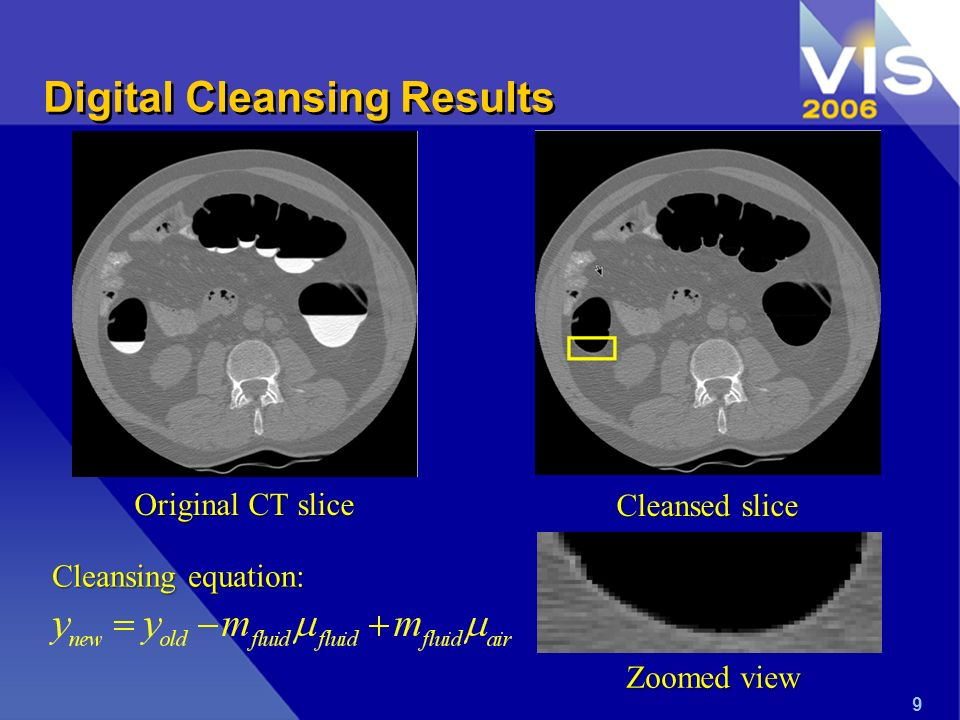 Digital Cleansing Results Original CT slice Cleansed slice Zoomed view 9 Cleansing equation: